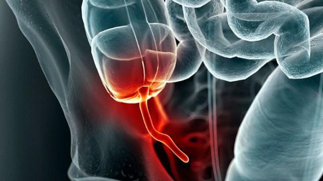 Penyebab Penyakit Usus Buntu dan Gejalanya yang Harus