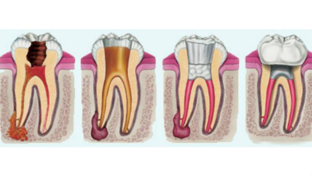 Seperti Apakah Perawatan Saluran Akar Gigi Health Liputan6 Com