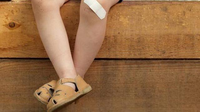 5 Cara Menangani Luka Lecet Pada Anak Yang Aman Dan Efektif Hot Liputan6 Com