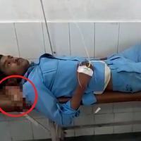 Seorang pria menggunakan kakinya yang diamputasi sebagai bantal karena tak mendapatkan pelayanan baik di rumah sakit. (Sumber Foto: NextShark)