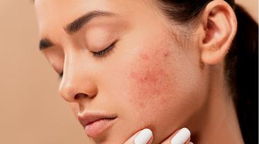12 Macam Macam Jerawat yang Sering Muncul pada Wajah, Beserta Penyebab dan Cara Mengatasinya