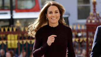Luka di Pelipis Kate Middleton Diakibatkan Prosedur Ekstensi Rambut?