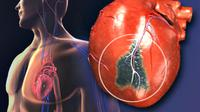 Ilustrasi atherosclerosis, penyumbatan pembuluh darah jantung. (Sumber webMD)
