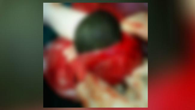 Gumpalan rambut seukuran buah melon ditemukan dalam lambung seorang pasien wanita berusia 38 tahun. (Sumber BMJ Case Reports)