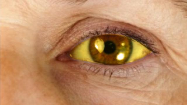 10 Obat Tradisional Penyakit Kuning Yang Ampuh Gunakan Bahan Alami Hot Liputan6 Com