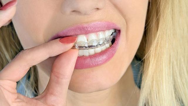 Orang Orang Ini Tidak Boleh Lakukan Pemutihan Gigi Kilat Health