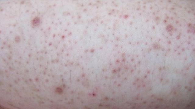 Ilustrasi penyakit kulit ayam