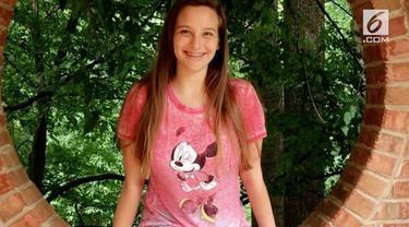 Gadis asal Amerika bernama Alexi Ryann Stafford tewas setelah memakan satu gigitan kukis. Diketahui Alexi memang mengalami alergi kacang, Alexi meninggal 90 menit setelah memakan kukis yang mengandung kacang di rumah temannya.