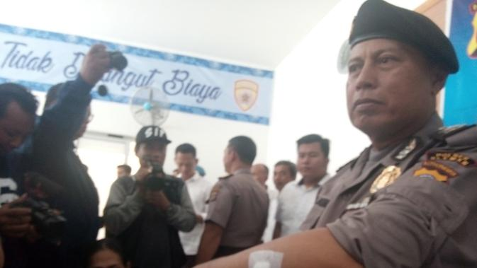 Aiptu Al Munir menunjukan bekas luka sabetan pelaku penyerangan Gereja Lidwina (Liputan6.com/Yanuar)