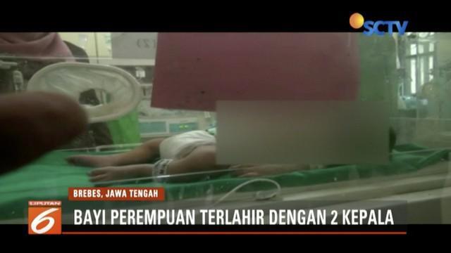 Seorang ibu di Brebes, Jawa Tengah, melahirkan bayi perempuan berkepala dua. Ia dan suami berharap pemerintah dapat membari bantuan.