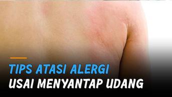 VIDEO: Tips Atasi Alergi Usai Menyantap Udang