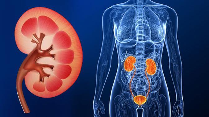 CAPD, Terapi Terbaik untuk Penderita Gagal Ginjal
