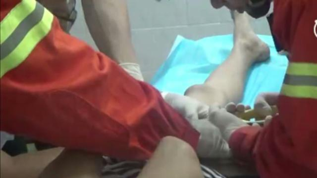 Cincin Tersangkut di Penis, Remaja China Dibawa ke Rumah Sakit