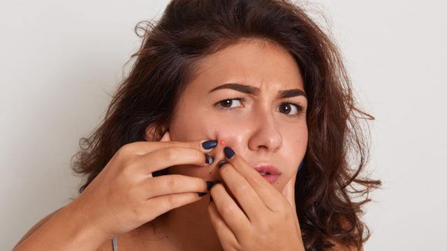 23 Cara Menghilangkan Jerawat Batu Tanpa Obat Aman Dan Cepat Hot Liputan6 Com