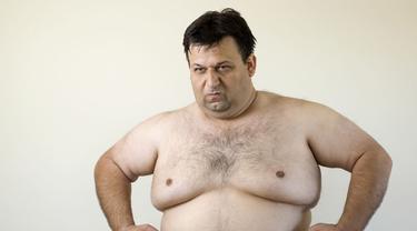 Ilustrasi payudara pria