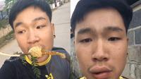 Bibir pemuda ini bengkak karena memakan madu langsung dari sarangnya (@witsawa56/tiktok.com).