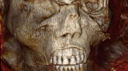 "Gambar selebaran yang dirilis oleh Kementerian Pariwisata dan Purbakala Mesir pada 17 Februari 2021 menunjukkan pemindaian 3D dari kepala mumi raja Mesir kuno Seqenenre Taa II. Firaun Seqenenre Taa II dijuluki ""Pemberani"". (Egyptian Ministry of Antiquities/AFP)"