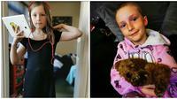 Kisah Gadis Mencabuti Rambutnya Sampai Botak. (Sumber: Dailymail)