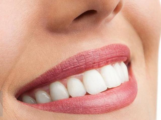 19 Cara Memutihkan Gigi Secara Alami Efektif Dan Tanpa Efek