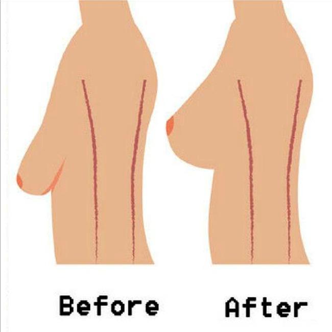 12 Gerakan Yoga Untuk Mengencangkan Payudara Kendur Beauty Fimela Com