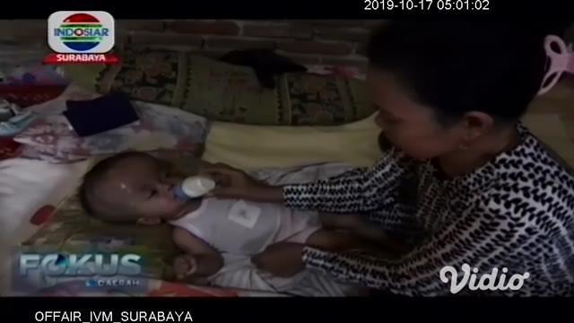 Seorang bayi sepuluh bulan di Nganjuk, Jawa Timur, menderita hidrosefalus. Kepala sang bayi terus membesar meski sudah berulang kali berobat ke rumah sakit.