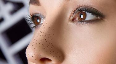 15 Cara Alami Menghilangkan Komedo Hitam Dan Putih Di Hidung Dengan Cepat Beauty Fimela Com