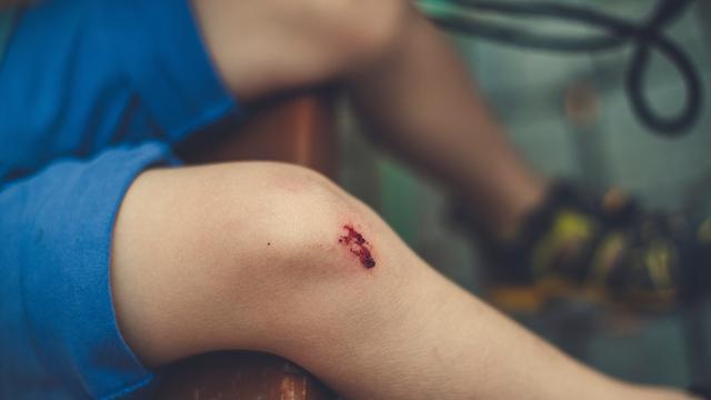 Ilustrasi pembekuan darah