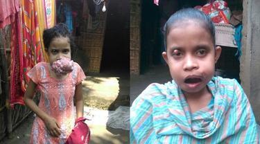 Alami Tumor Mulut, Kini Gadis Ini Bisa Makan dengan Normal Lagi