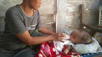 Siti Masiroh, bayi berusia 6 bulan penderita hidrosefalus, warga Dukuh Wotrangkul RT 4 RW 1, Desa Klopoduwur, Kecamatan Banjarejo, Kabupaten Blora, Jawa Tengah. (Liputan6.com/ Ahmad Adirin)