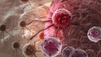 Ilustrasi sel kanker   Klikdokter