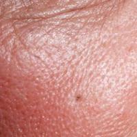 Ilustrasi pori-pori wajah yang besar. (via: dokter.id)