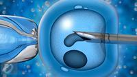 Ilustrasi Sperma atau Sel Reproduksi Laki-laki. (iStockphoto)