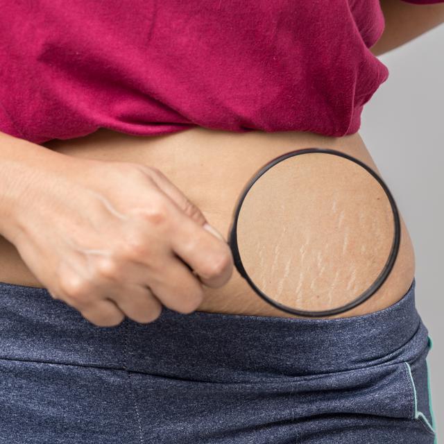 7 Cara Menghilangkan Stretch Mark Setelah Melahirkan Secara Alami Health Liputan6 Com