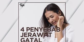 4 Penyebab Jerawat Gatal dan Tidak Nyaman