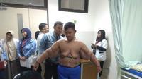 Pasien eks obesitas asal Karawang Jawa Barat Arya Permana, tengah dilakukan pengukuran baju di ruang poliklinik anak RSHS, untuk dipakai usai operasi bedah plastik pada 24 Juli 2019 mendatang. (Liputan6.com/Arie Nugraha)