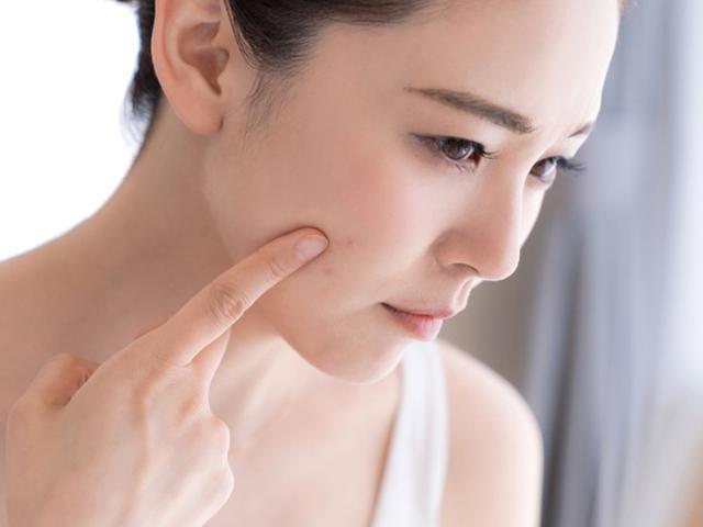 Hilangkan Jerawat Batu Dengan Cara Mudah Beauty Fimela Com