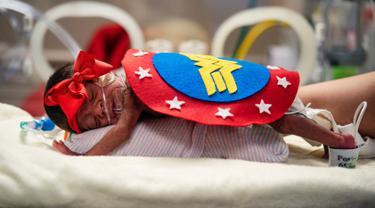 Infant Calixta Renteria mengenakan kostum Wonder Woman saat menjalani perawatan di bagian NICU sebuah rumah sakit di Texas, Rabu (30/10/2019). Pihak RS memakaikan kostum pada bayi-bayi prematur untuk merayakan Halloween pertama mereka. (Sarah A. Miller/Tyler Morning Telegraph via AP)