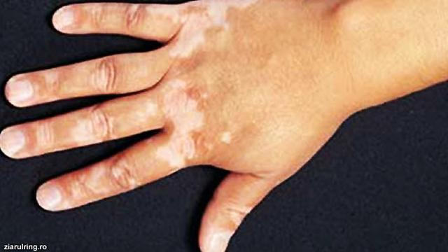 Vitiligo Warna Kulit Pudar Menjadi Putih Susu Health Liputan6 Com