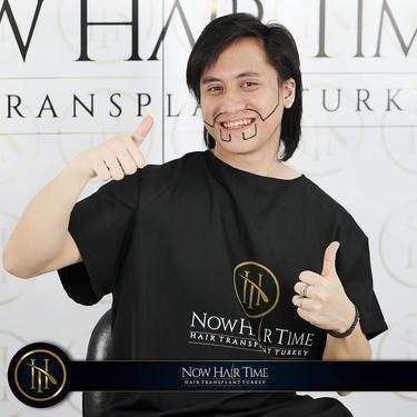 Potret Kevin Aprilio Jalani Transplantasi Rambut. (Sumber: Instagram/now.hairtime)