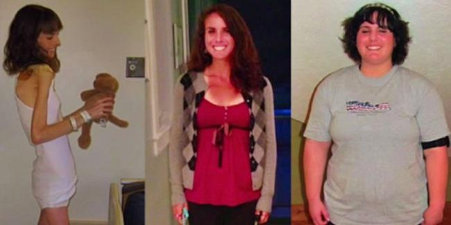 Perubahan tubuh Brittany Brugunder   copyright elitedailymail.com