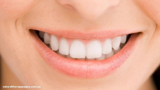 Yang Harus Diketahui Sebelum Memutihkan Gigi Health Liputan6 Com