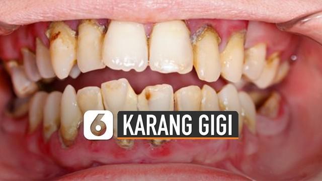 Sebelum karang gigi benar-benar muncul, berikut cara mencegahnya.
