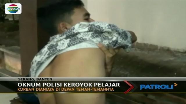 Gara-gara masalah asmara, pelajar SMK di Kota Serang ini luka-luka lantaran dikeroyok belasan oknum polisi.