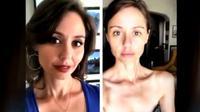 Perubahan wajah Marie setelah turun berat badan secara misterius (Foto: Dok. YouTube/The Doctors).