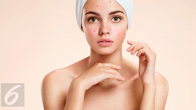 Manfaat Air Garam Untuk Atasi Jerawat Fashion Beauty Liputan6 Com