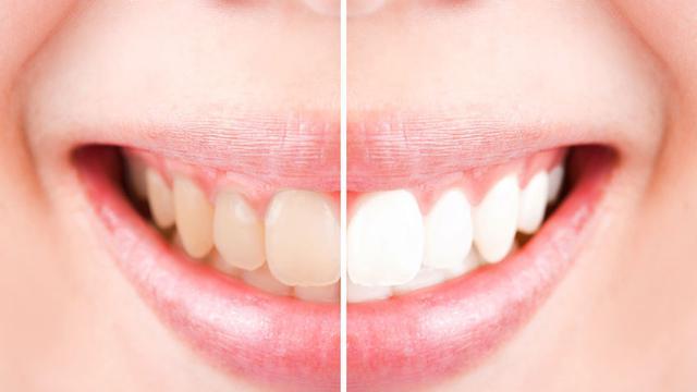 Tak Perlu Menunggu Lama Ini Cara Bikin Gigi Putih Alami Citizen6