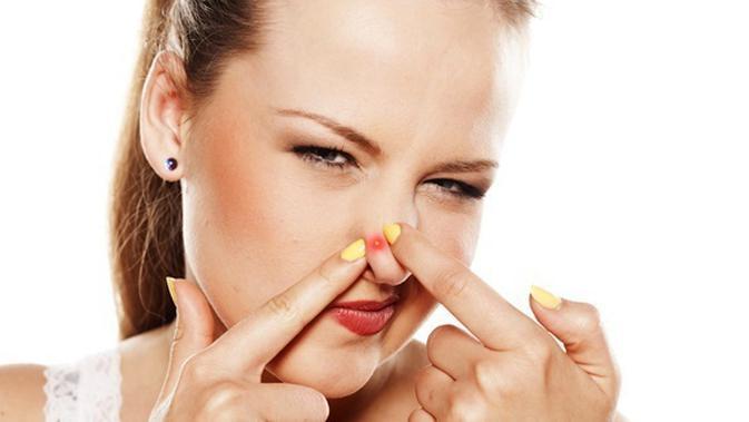Hilangkan Jerawat Dalam Semalam Dengan Lidah Buaya Kunyit Beauty Fimela Com